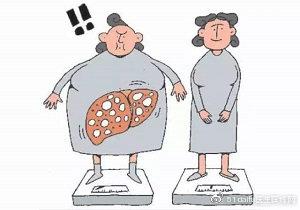 【男性健康】哪些是诱发脂肪肝的原因?