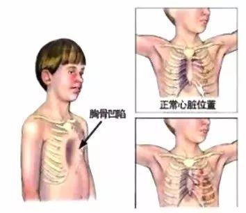 """""""鸡胸""""形成原因有许多,及时治疗与改善为关键"""
