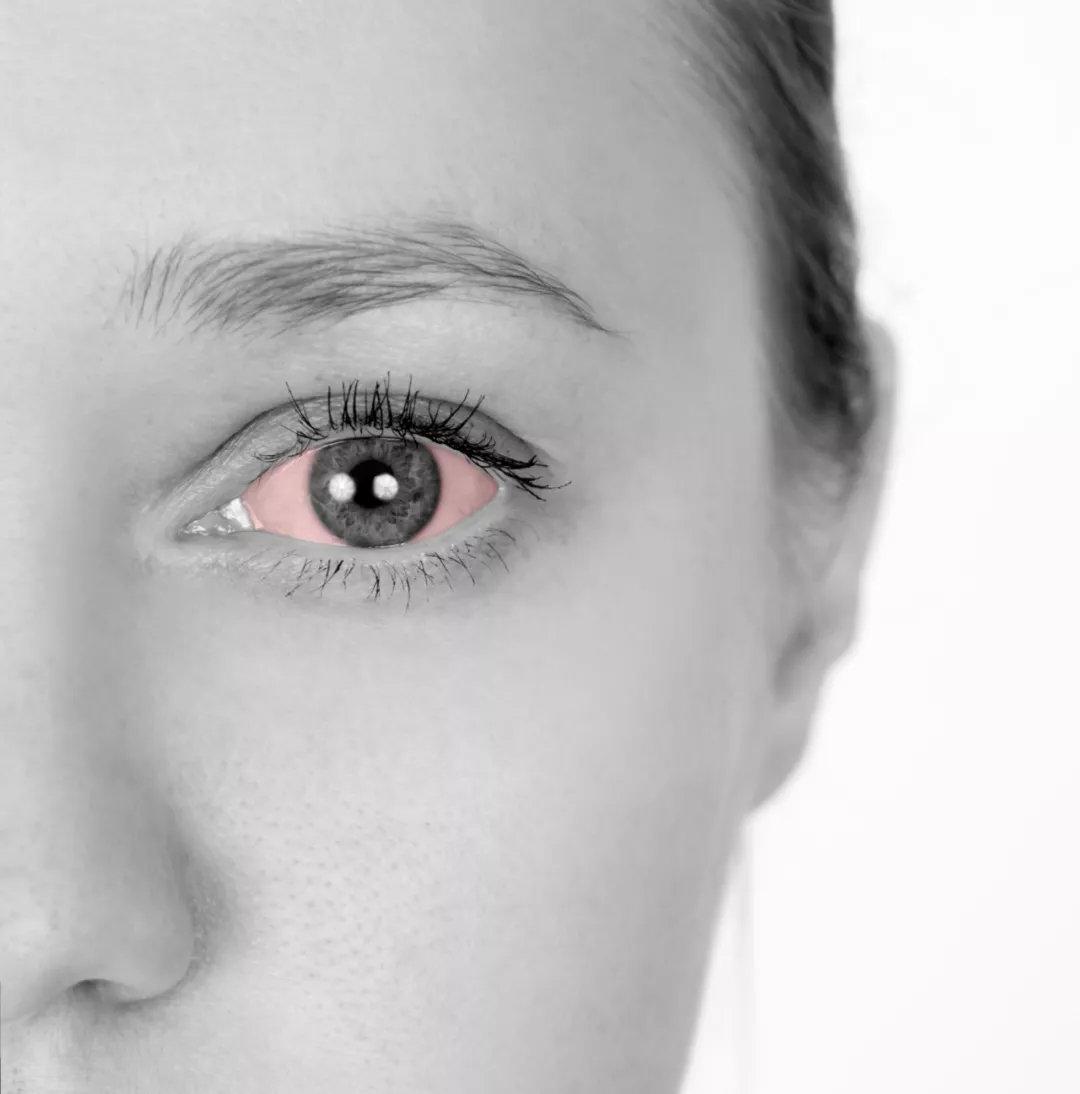 外伤性青光眼——不仅是眼外伤那么简单,还可能会悄悄夺走你的视力!