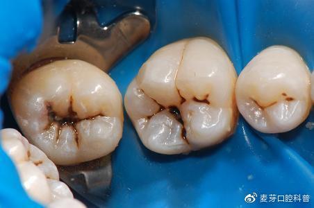 塞牙不是一件正常现象?为什么吃饭会塞牙?