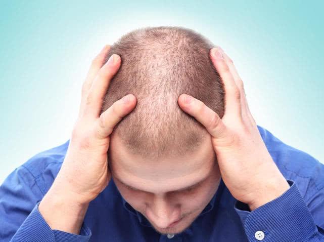 脱发越来越严重,真的是老了?注意:还可能是这5种食物吃太多