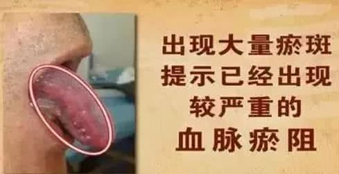 看舌头就知道心脏血管堵没堵