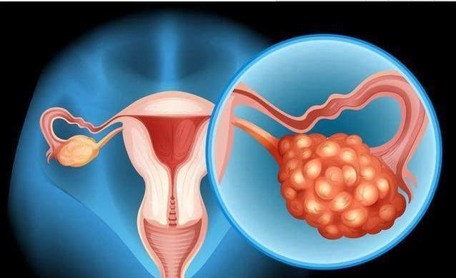 这2个信号一旦被错过,可能卵巢癌就已经来了