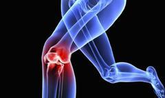 跑步减肥?医生,跑步最不适合这类人,跑得越多膝盖损伤越严重