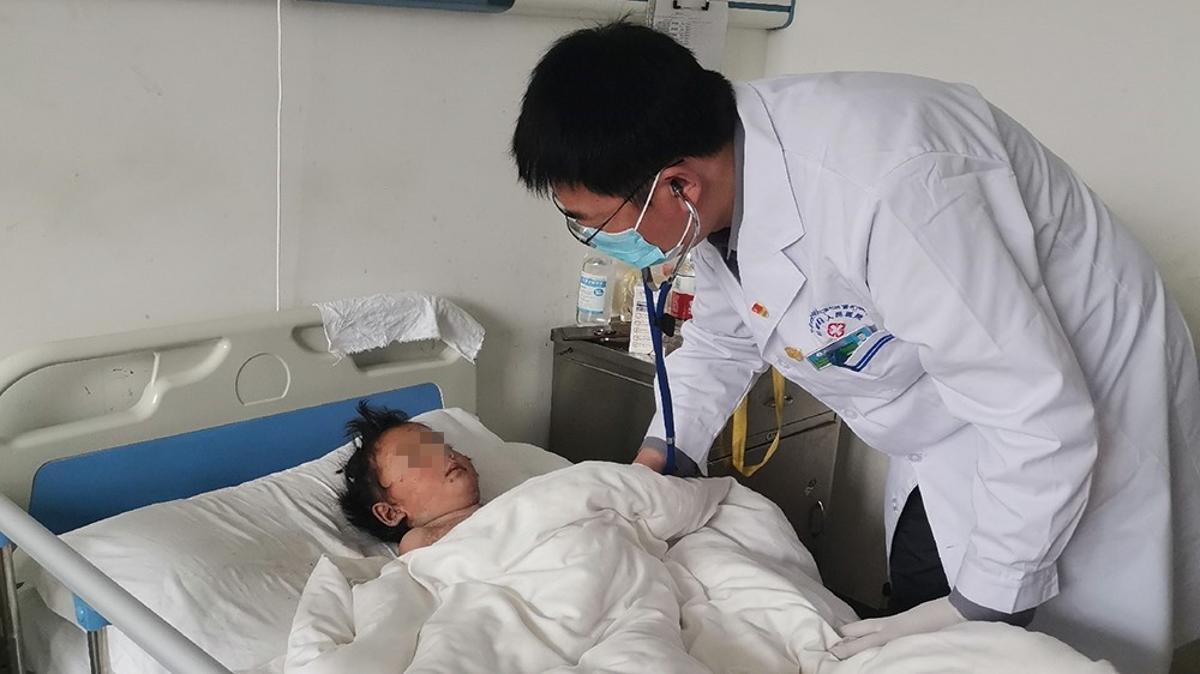 4岁藏族女童严重皮肤感染,上海龙华医院援藏专家精心救治