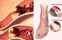 腿疼、脚麻、走不动,可能是血管堵了!专家教你自查风险,化险为夷~