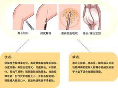 大腿吸脂后大腿凹凸不平怎么修复?