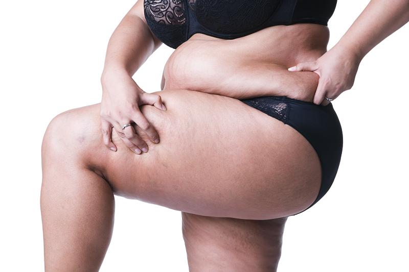 """小心陷入减肥""""骗局"""",会让你越来越胖?"""