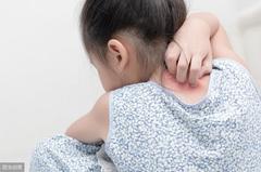 银屑病未来能根治吗?银屑病激素、非激素外用药应该如何取舍?