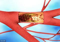 糖尿病患者们 要警惕心血管疾病
