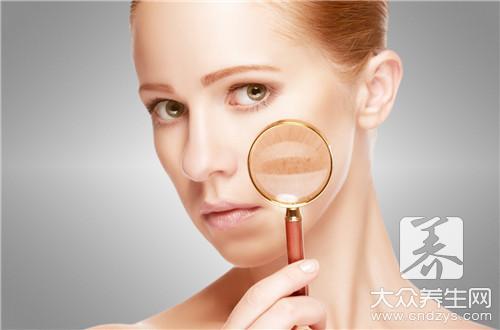 皮肤营养过剩的症状,脂肪粒,也可能长痘痘