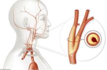 颈动脉有斑块,会有哪些症状?应该如何治疗?医生告诉你答案