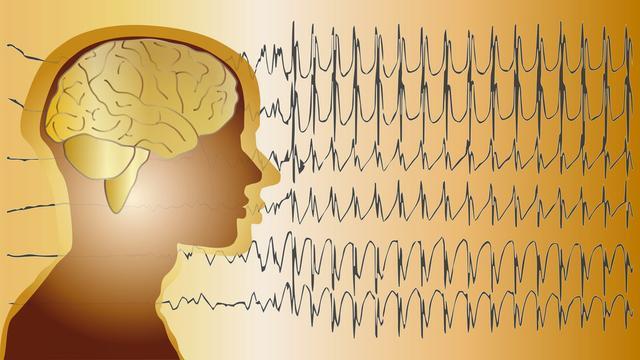 怎样不让癫痫患者受心理影响?癫痫的治疗一定要坚持?