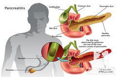 总胆红素高原因:发生急慢性黄疸型肝炎
