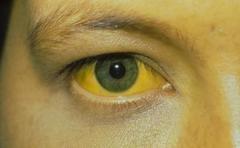 皮肤出现瘙痒和黄疸,一定要排查胆管癌