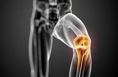心理、起居、功能锻炼调养法,膝关节炎可以这样治