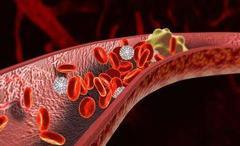 烟酒、高糖、油炸等食物是血栓加速器,多吃山月莓可缓解