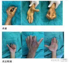 """机器拧伤左手不能弯曲,市一院这场手术让他手指""""绝处逢生"""""""