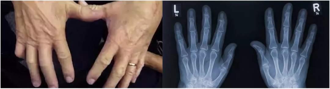 掰手指真的不会得关节炎吗?