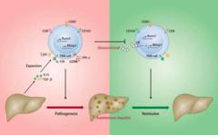自身免疫性肝炎疾病持续进展和停药后容易复发?可能就是因为它!